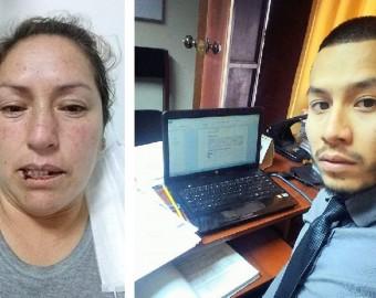 Destituyen a servidor de Poder Judicial por golpear salvajemente a mujer en Abancay